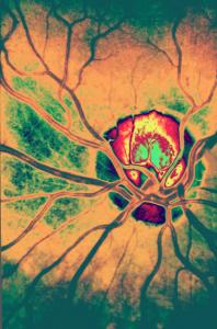 Anatomía Ojo