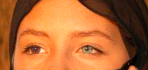Heterocromía parcial